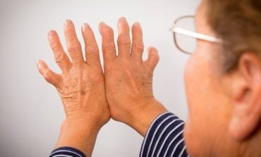 Médicos atenderán consultas de los ciudadanos sobre enfermedades reumáticas en Reumasalud 2019